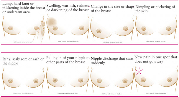 Breast cancer warning signs pain